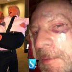 Del amor al odio: Así quedó Alejandro Tommasi de golpeado