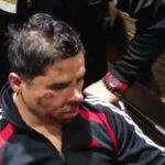 Así lucía el rostro del cantante tras ser atendidas de las heridas en su rostro