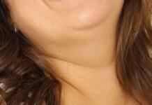 Considera opciones menos invasivas para eliminar la grasa del cuello