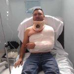 Marcos Garza terminó con golpes y el hombro dislocado