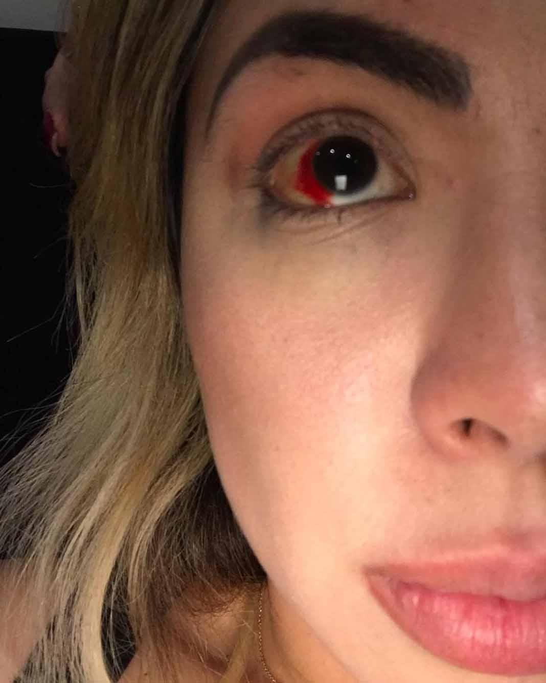 El derrame ocular tardará varios días en desaparecer