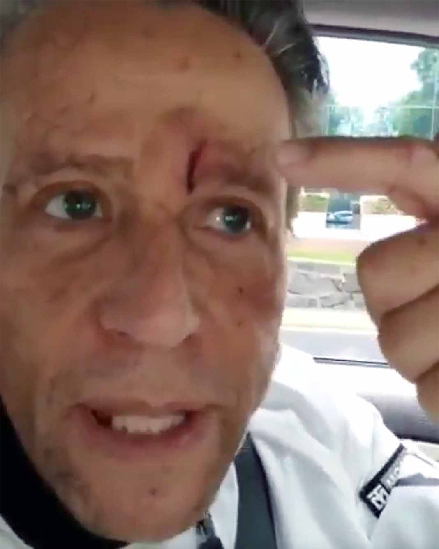El actor recibió 5 puntadas en el rostro