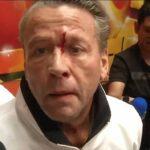 El actor salió sangrando de la reunión con su oponente y la prensa