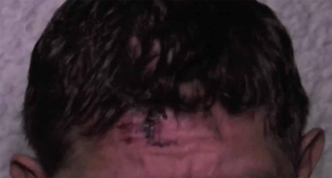 Esta es la herida en la frente que le hicieron los ladrones al productor de novelas