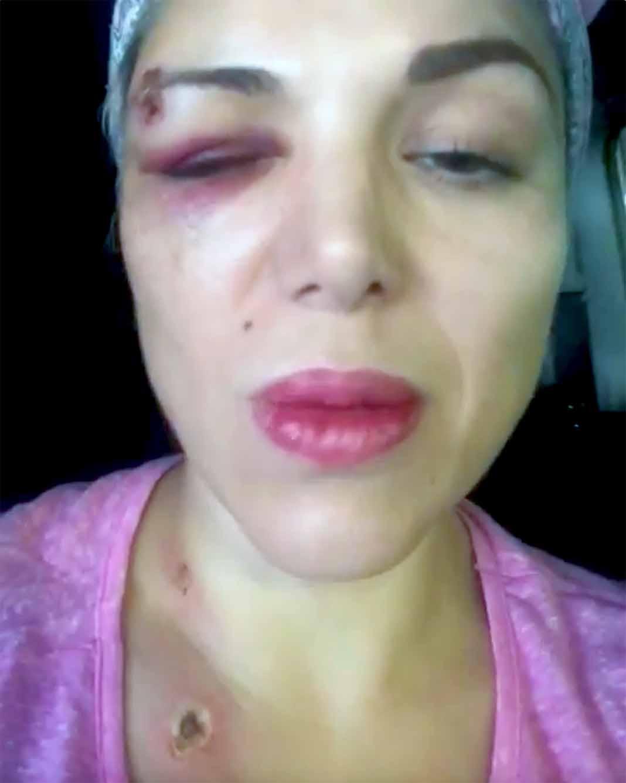 La cantante sufrió golpes y tres impactos de bala